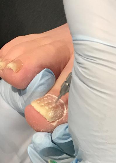Fungal nail treatment. The Lacuna Method