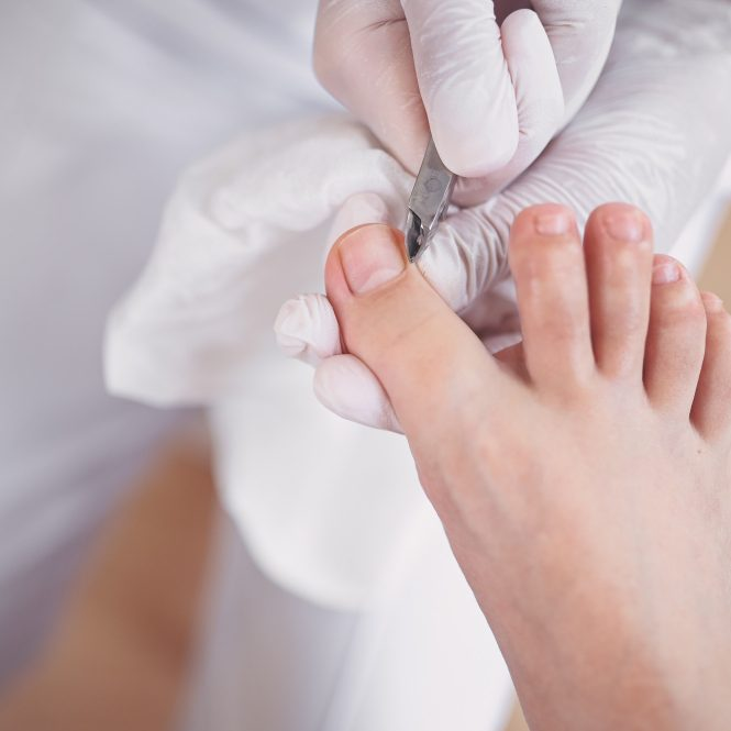 professional-medical-pedicure-procedure-close-up-using-nail-clippers